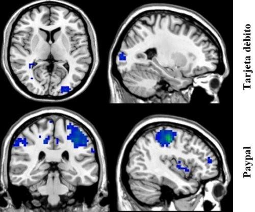 Método de pago según la neurología